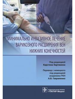 Минимально инвазивное лечение варикозного расширения вен